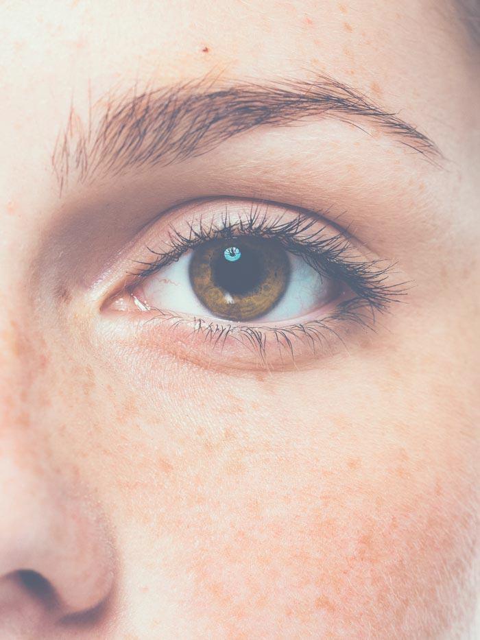 Floppy Eyelid Syndrome | Oasis Eye Face and Skin, Ashland, OR