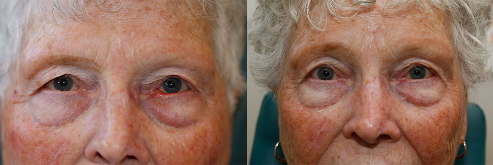 Ectropion Repair Patient 9 | Oasis Eye Face and Skin, Ashland, OR