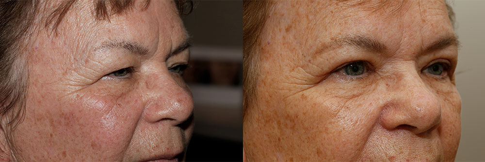 Upper Eyelid Patient 12 | Oasis Eye Face and Skin, Ashland, OR
