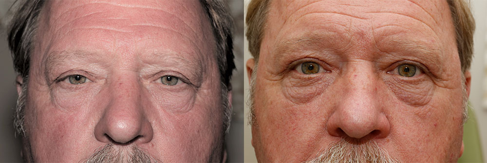 Upper Eyelid, Ptosis, Skin Cancer Patient 13 | Oasis Eye Face and Skin, Ashland, OR