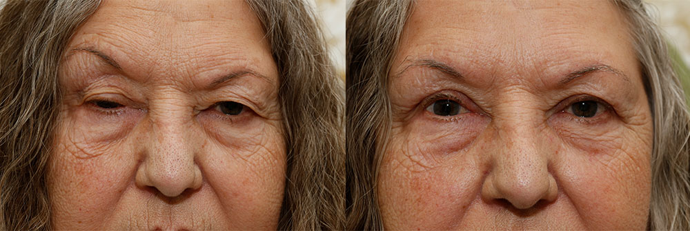 Upper Eyelid and Ptosis Patient 14 | Oasis Eye Face and Skin, Ashland, OR