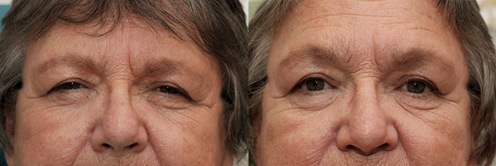 Upper Eyelid, Brow Lift, and Ptosis Patient 15 | Oasis Eye Face and Skin, Ashland, OR