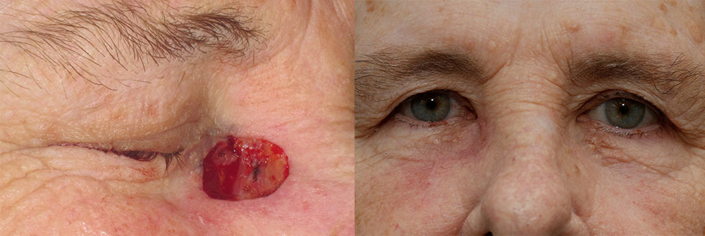 Skin Cancer Patient 16 | Oasis Eye Face and Skin, Ashland, OR