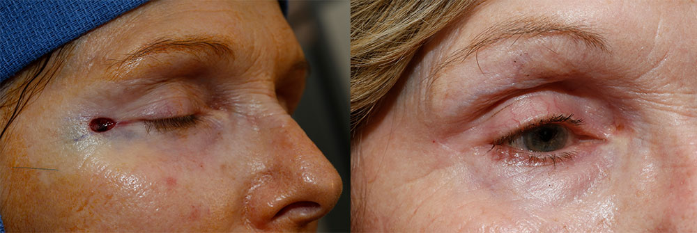 Skin Cancer Patient 18 | Oasis Eye Face and Skin, Ashland, OR