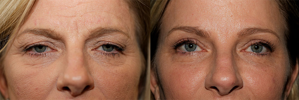 Upper Eyelid and Brow Lift Patient 19 | Oasis Eye Face and Skin, Ashland, OR