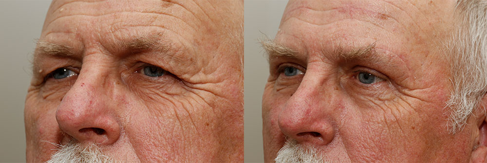 Upper Eyelid Patient 1 | Oasis Eye Face and Skin, Ashland, OR