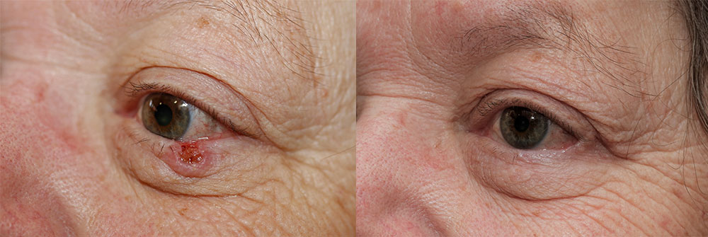 Skin Cancer Patient 20 | Oasis Eye Face and Skin, Ashland, OR