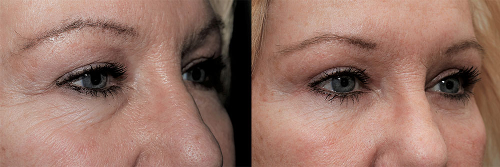 Upper and Lower Eyelids Patient 21 | Oasis Eye Face and Skin, Ashland, OR