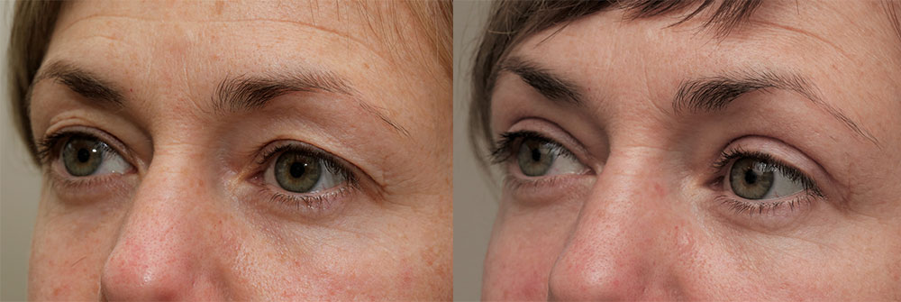 Upper Eyelids Patient 22 | Oasis Eye Face and Skin, Ashland, OR