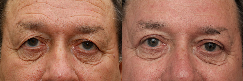 Upper Eyelids Patient 23 | Oasis Eye Face and Skin, Ashland, OR