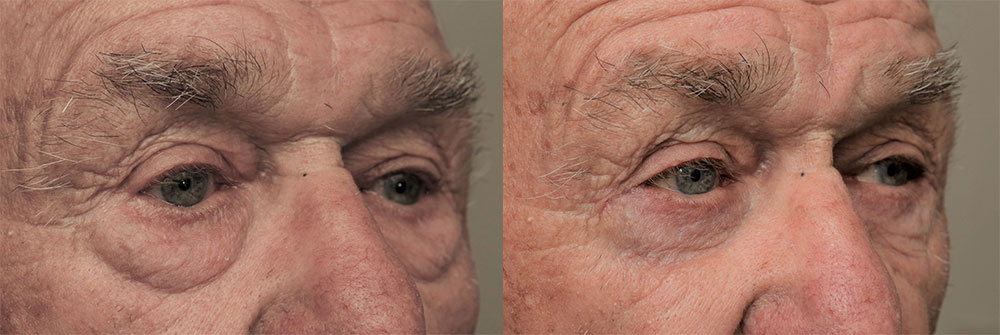 Lower Eyelids Patient 24 | Oasis Eye Face and Skin, Ashland, OR