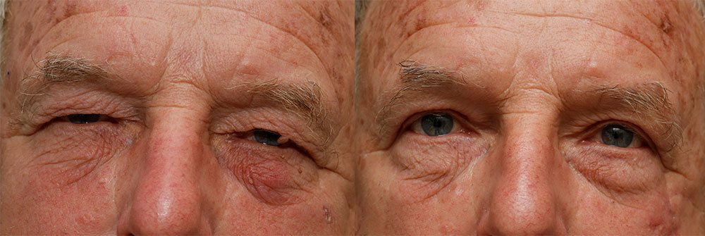 Eyelid Skin Cancer And Reconstruction Oasis Eye Face And Skin