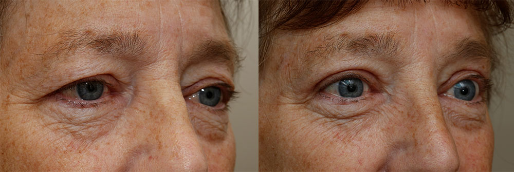 Upper Eyelids Patient 27 | Oasis Eye Face and Skin, Ashland, OR