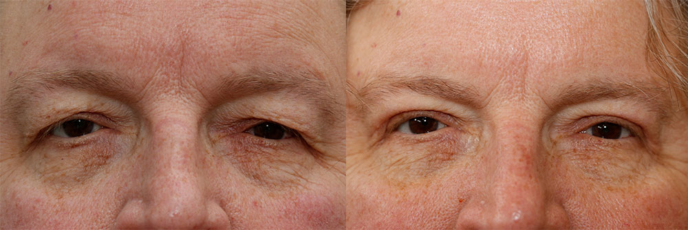 Upper Eyelids Patient 28 | Oasis Eye Face and Skin, Ashland, OR
