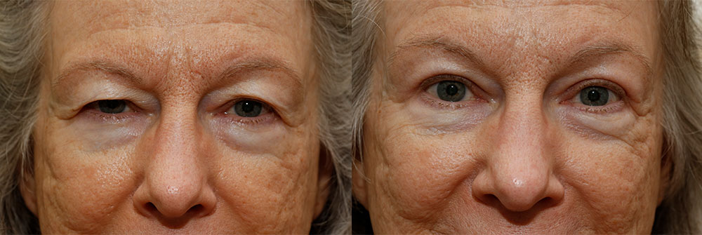Upper Eyelid Patient 2 | Oasis Eye Face and Skin, Ashland, OR