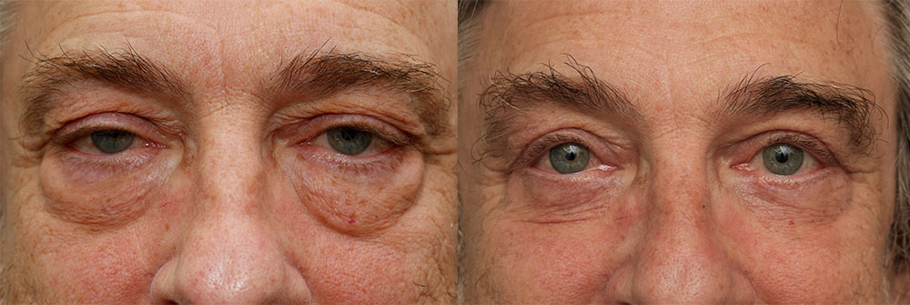 Upper, Lower Ptosis Repair Eyelids Patient 29 | Oasis Eye Face and Skin, Ashland, OR