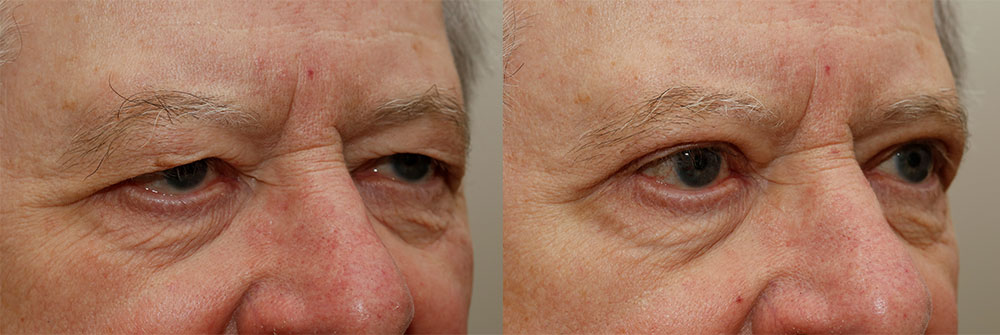 Lower Eyelids Patient 26 | Oasis Eye Face and Skin, Ashland, OR