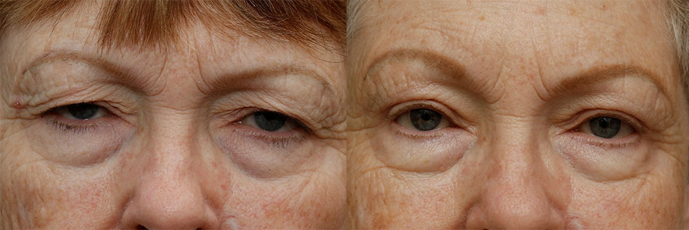 Upper Eyelids Patient 32 | Oasis Eye Face and Skin, Ashland, OR