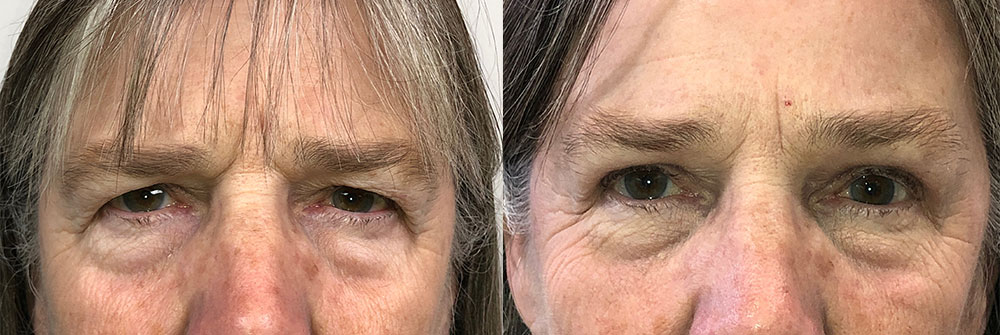 Upper Eyelid and Brow Lift Patient 33   Oasis Eye Face and Skin, Ashland, OR