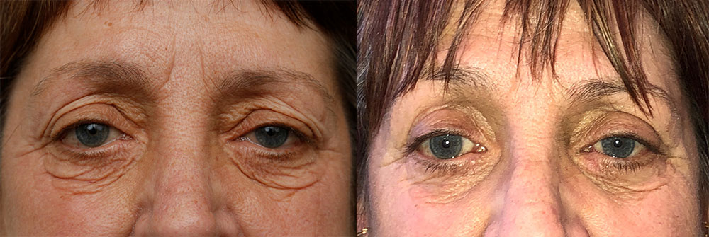 Upper and Lower Eyelid Patient 34 | Oasis Eye Face and Skin, Ashland, OR