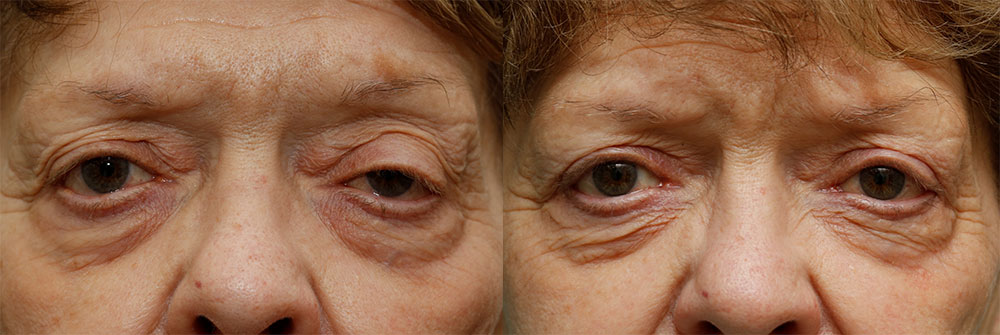 Upper Eyelid (Blepharoplasty) and Ptosis Repair