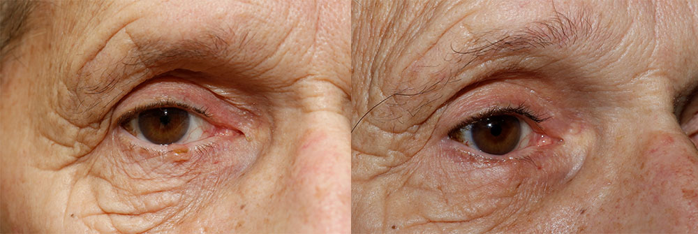 Skin Cancer Patient 36 | Oasis Eye Face and Skin, Ashland, OR