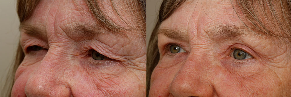 Upper Eyelids Patient 37 | Oasis Eye Face and Skin, Ashland, OR