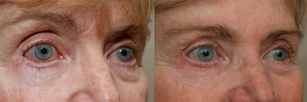 Retraction Repair Patient 38 | Oasis Eye Face and Skin, Ashland, OR