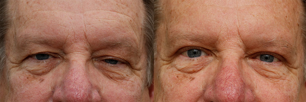 Upper Eyelid and Ptosis Patient 39 | Oasis Eye Face and Skin, Ashland, OR