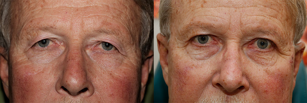 Upper Eyelid Patient 3 | Oasis Eye Face and Skin, Ashland, OR