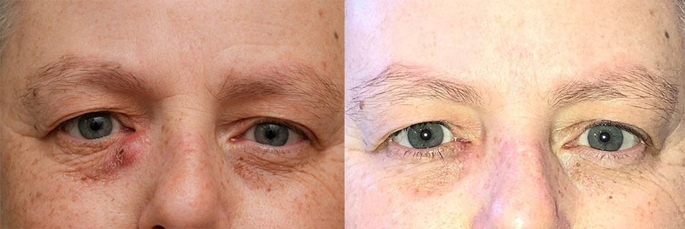 Tear Drain Repair Patient 46 | Oasis Eye Face and Skin, Ashland, OR