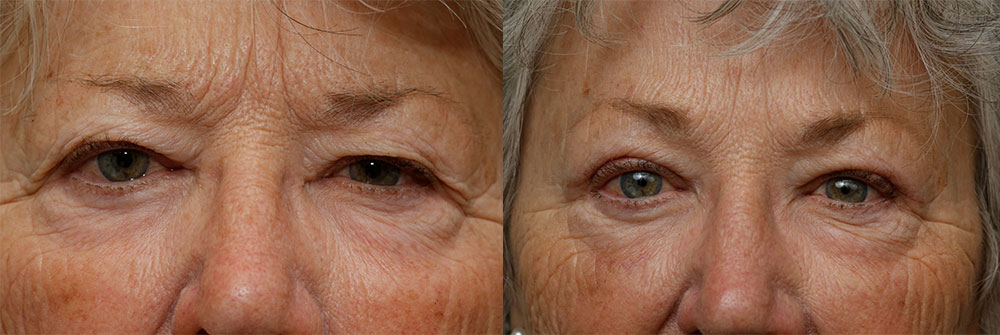 Upper Eyelid and Brow Lift Patient 47 | Oasis Eye Face and Skin, Ashland, OR