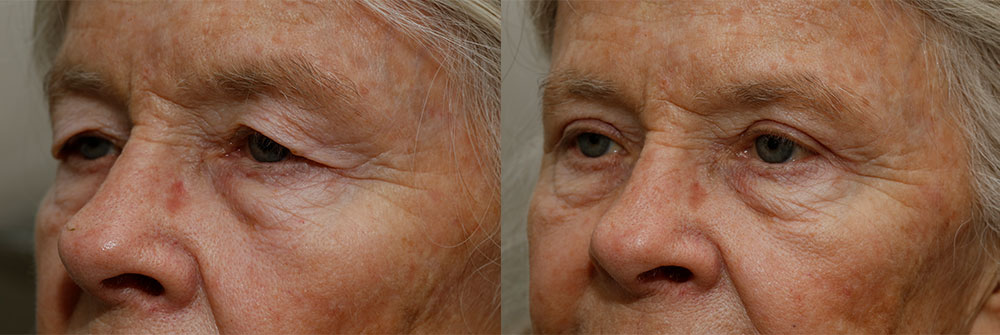 Upper Eyelid Patient 4 | Oasis Eye Face and Skin, Ashland, OR