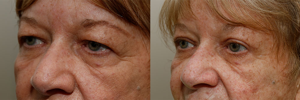 Upper Eyelid Patient 5 | Oasis Eye Face and Skin, Ashland, OR