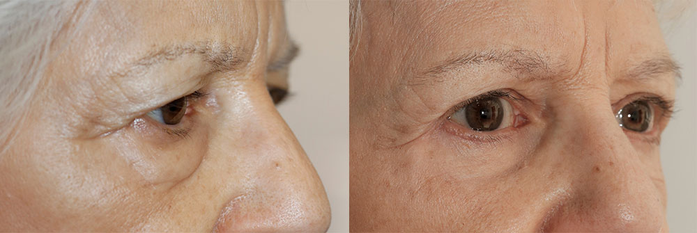 Upper Eyelid Patient 6 | Oasis Eye Face and Skin, Ashland, OR