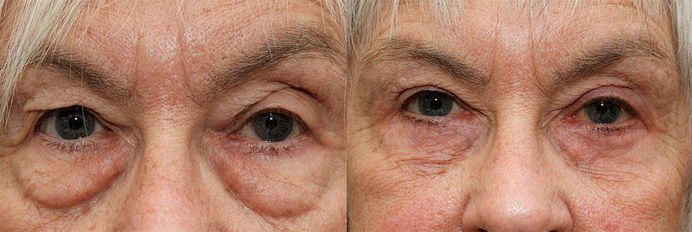 Upper Eyelid Patient 7 | Oasis Eye Face and Skin, Ashland, OR
