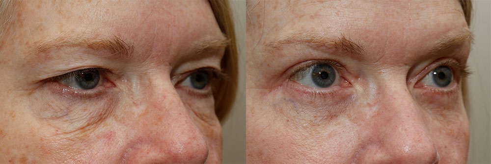 Upper Eyelid Patient 8 | Oasis Eye Face and Skin, Ashland, OR