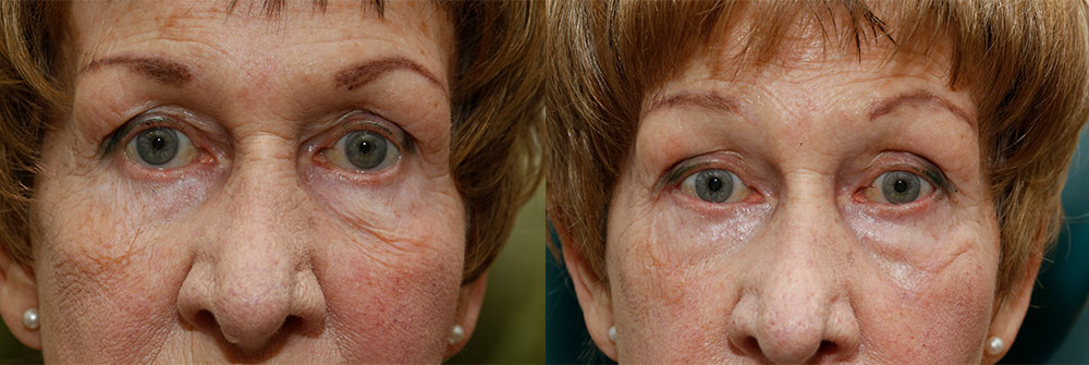 Retraction Repair Patient 10 | Oasis Eye Face and Skin, Ashland, OR