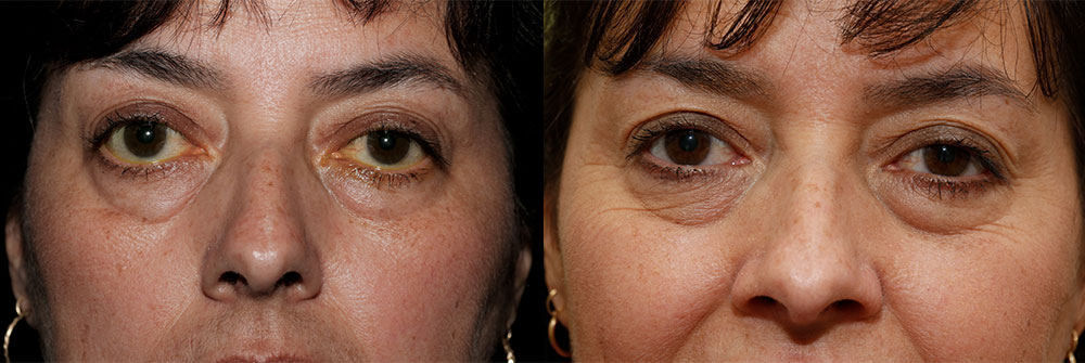 Retraction Repair Patient 11 | Oasis Eye Face and Skin, Ashland, OR