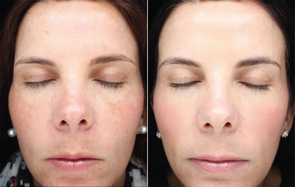 Halo Treatment Photos | Oasis Eye Face and Skin, Ashland, OR
